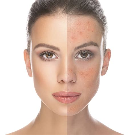 Acne scarring treatment picture 10