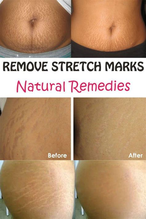can maca heal stretch marks picture 3