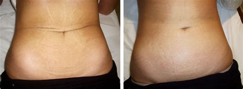 stretch marks lifting weights to heal them picture 20