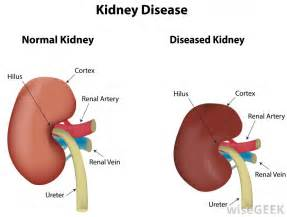 how does liver function affect the kidneys picture 2