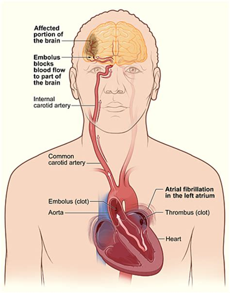 causes of blood clot in brain picture 14