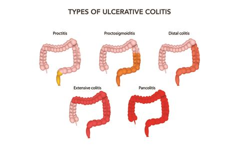 types of intestinal colitis picture 2