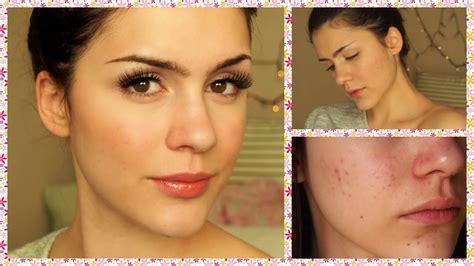 doryx for acne picture 10