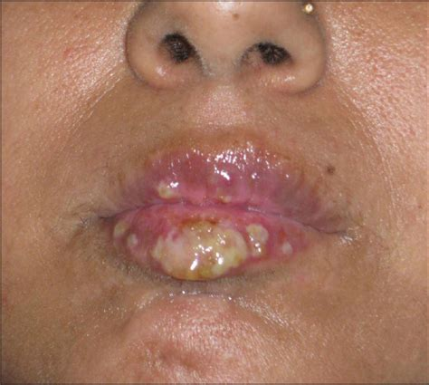 meds for herpes 1 picture 15