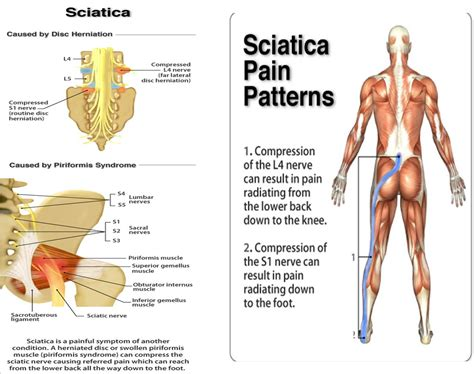 pain relief for sciatica picture 10