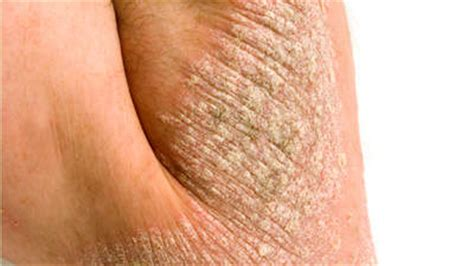 dry arms and legs after menopause picture 10