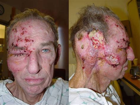 pictures of men with herpes picture 3