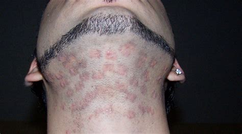 burn marks from hair removal creams picture 5