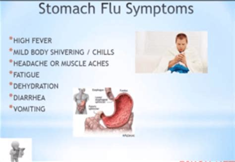 is the a stomach virus going around in picture 2