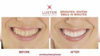 whiten teeth in 90 minutes without bleaching kits picture 9