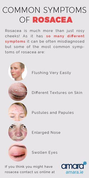 rosacea facts picture 6