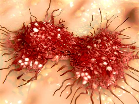 how fast does colon cancer grow picture 2