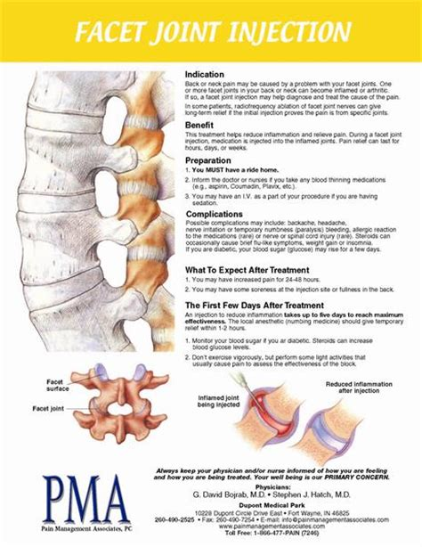 facet joint nerve eblasion picture 10