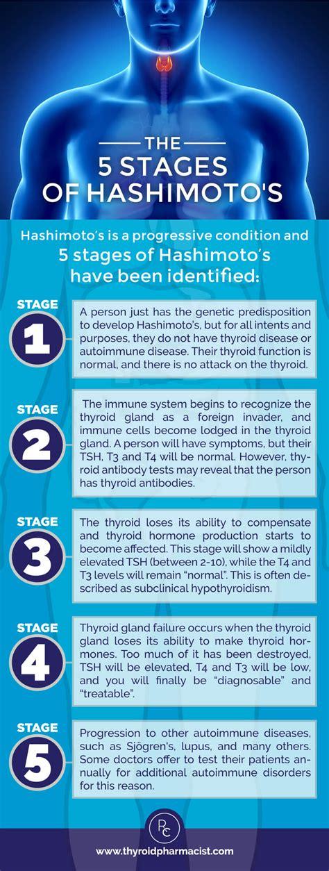 hashimoto thyroid disease picture 2