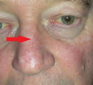 nose skin cancer pictures picture 3