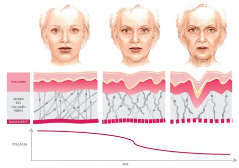 the effects of ageing on collagen and flexibility picture 7