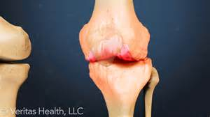 arthritis joint injections picture 14