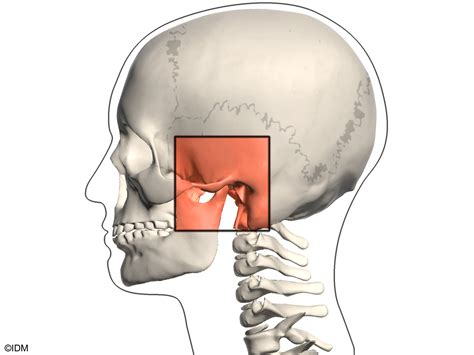 jaw joint pain picture 11