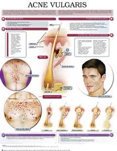 inflammatory el disease statistics picture 6