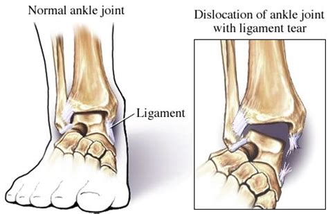 ankle joint recurrent subluxation dislocation picture 13