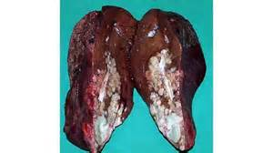 alieve cause liver cancer picture 1