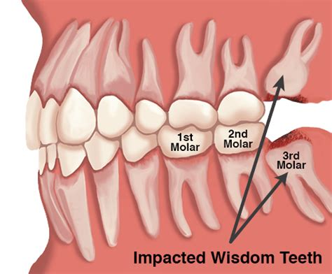 discount dental plans for wisdom teeth removal picture 12