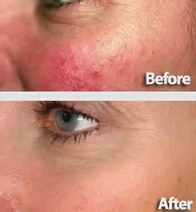 metrocreme acne picture 2