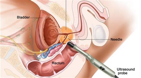 prostate exam becomes a ejaculation treatment picture 1