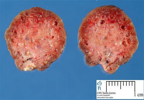 colon polyps and yeast picture 17