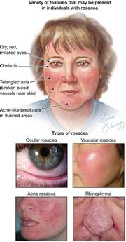 rosacea 4 types picture 1