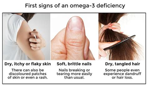 omega 3 and your skin picture 2