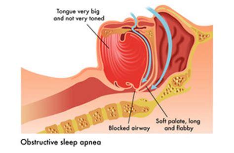 can sleep apnea lead to bad breath picture 3