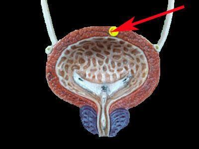 where is the colon located in the intestine picture 16