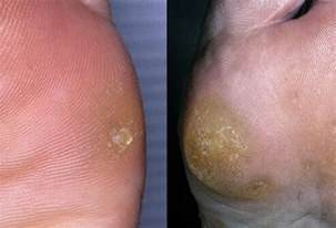 warts on ball of footfoot problems picture 15