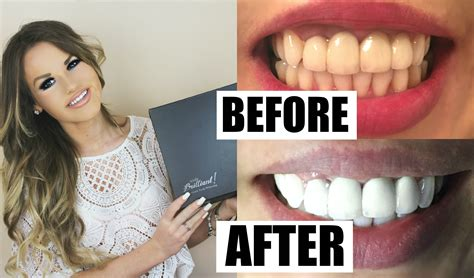 whiten your teeth to the max fast free picture 5
