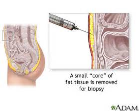 pill that dissolves stomach fat cells picture 8