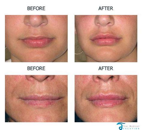 Lip injections cost picture 1
