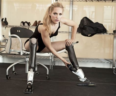 female amputee and artificial limbs picture 9