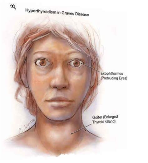 hyperthyroidism grave's disease and taking thyromine picture 9