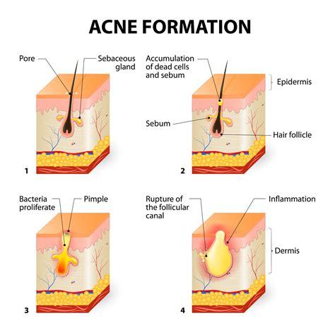 acne antibiotics picture 7