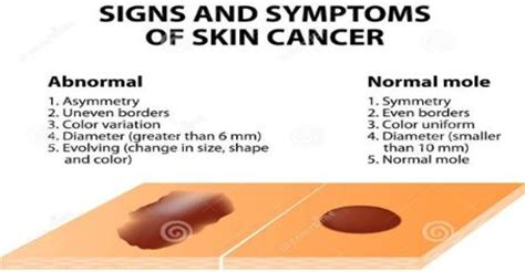 skin cancer science project picture 11