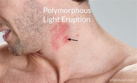 polymorphic skin lesions from uv exposure picture 4
