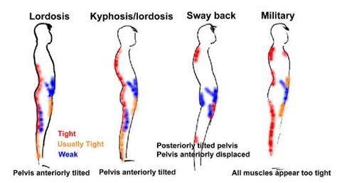 hip pain leftside body muscles weak picture 7
