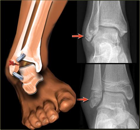 joints in ankle picture 1