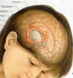 when brain tumor causes insomnia picture 10