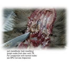 dermatology molescus picture 10