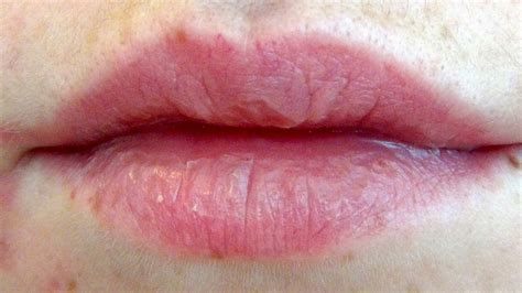 chapped lips picture 5