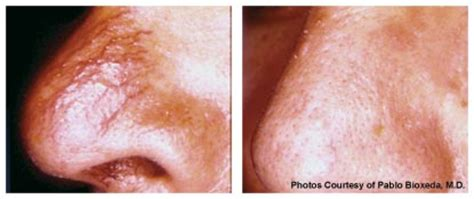 cheapest laser skin tightening treatments in inland empire picture 12