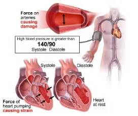 heat and blood pressure increase picture 6