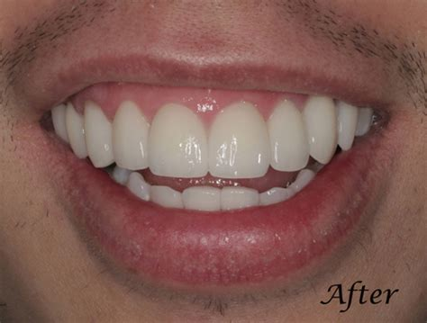 teeth whitening san francisco picture 1